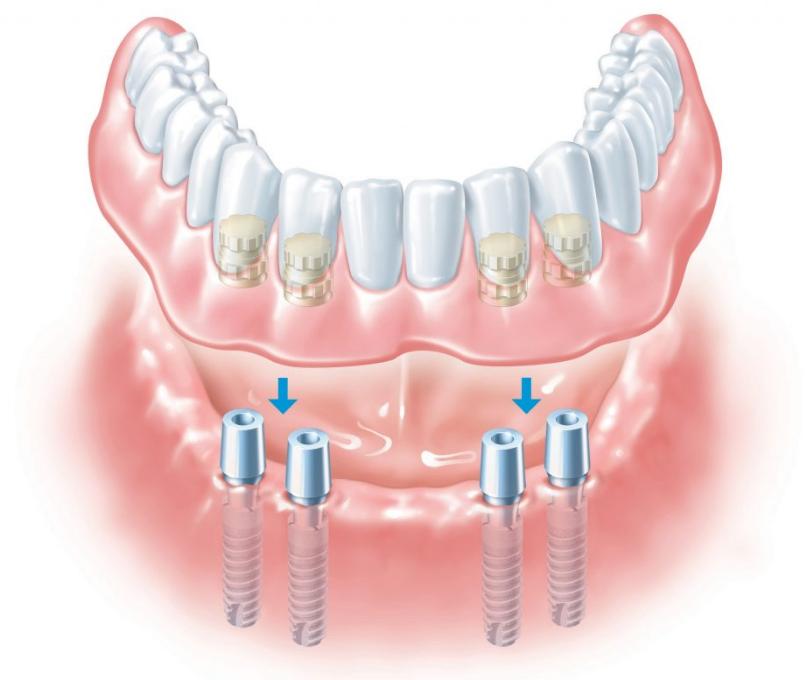 В какую графу декларации проставляется лечение зубов у детей